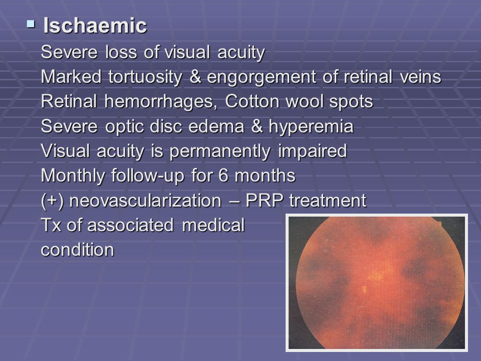 Ischaemic Severe loss of visual acuity