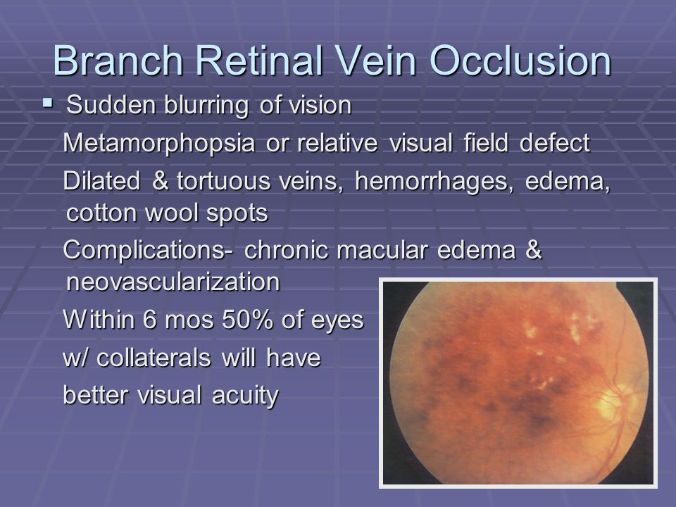 Branch Retinal Vein Occlusion