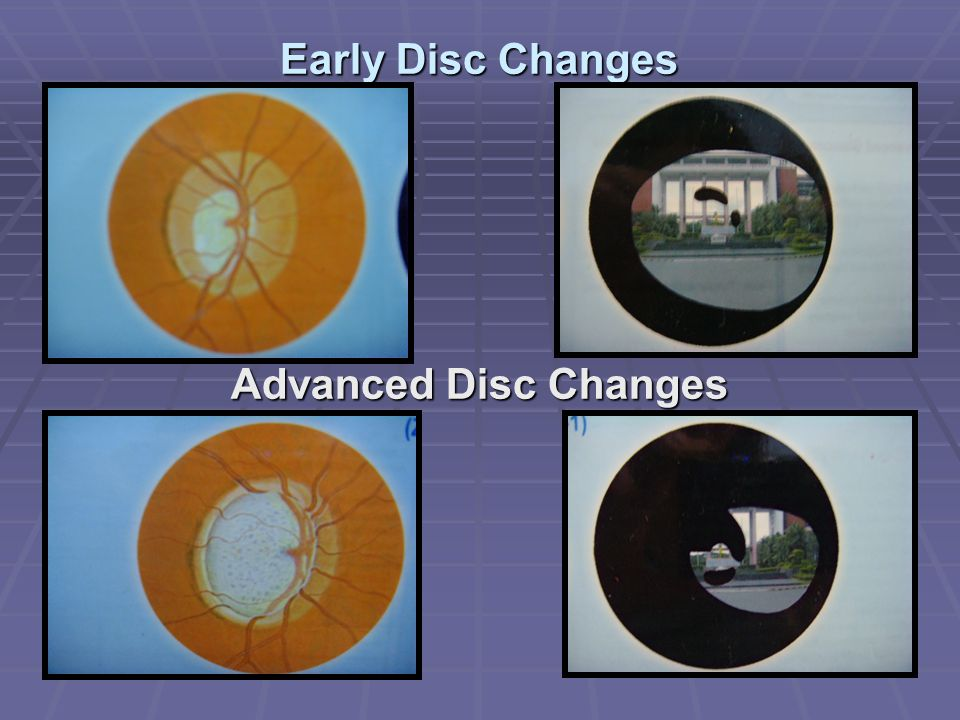 Early Disc Changes Advanced Disc Changes