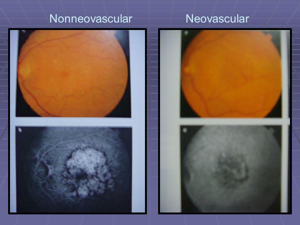 Nonneovascular Neovascular
