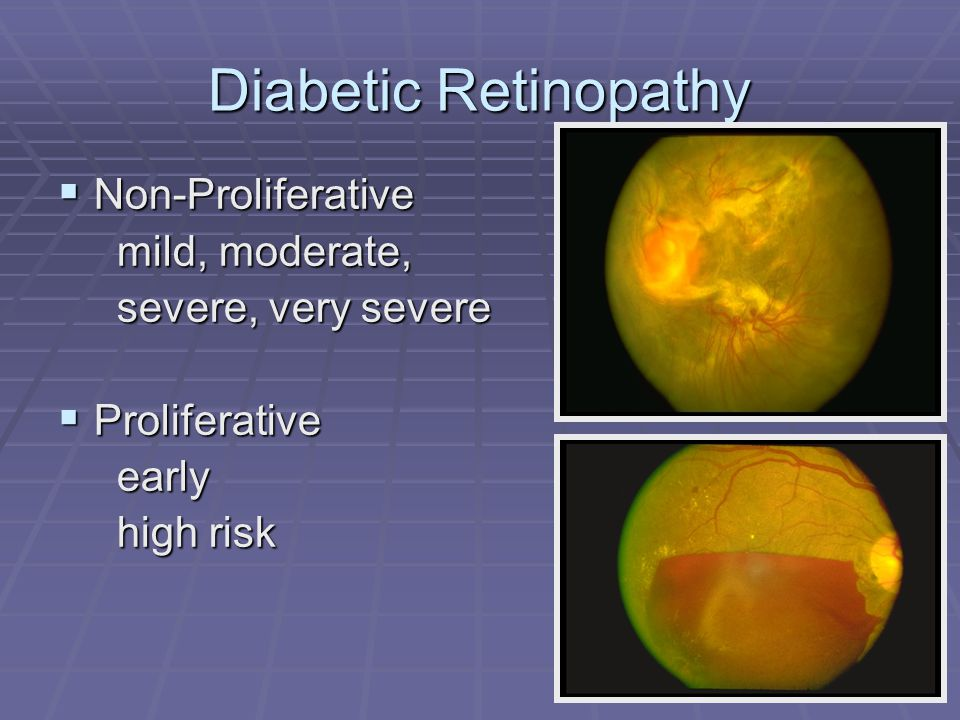 Diabetic Retinopathy Non-Proliferative mild, moderate,