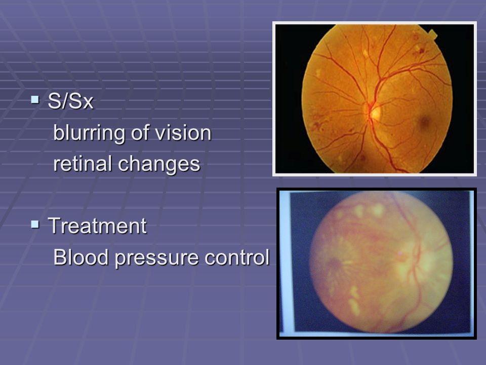 S/Sx blurring of vision retinal changes Treatment Blood pressure control