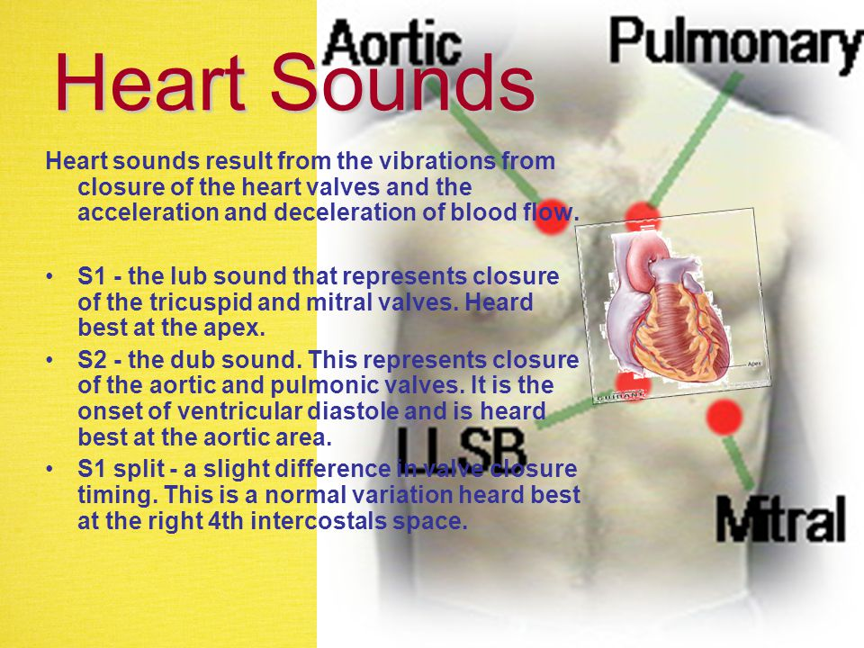 Heart Sounds Heart sounds result from the vibrations from closure of the heart valves and the acceleration and deceleration of blood flow.