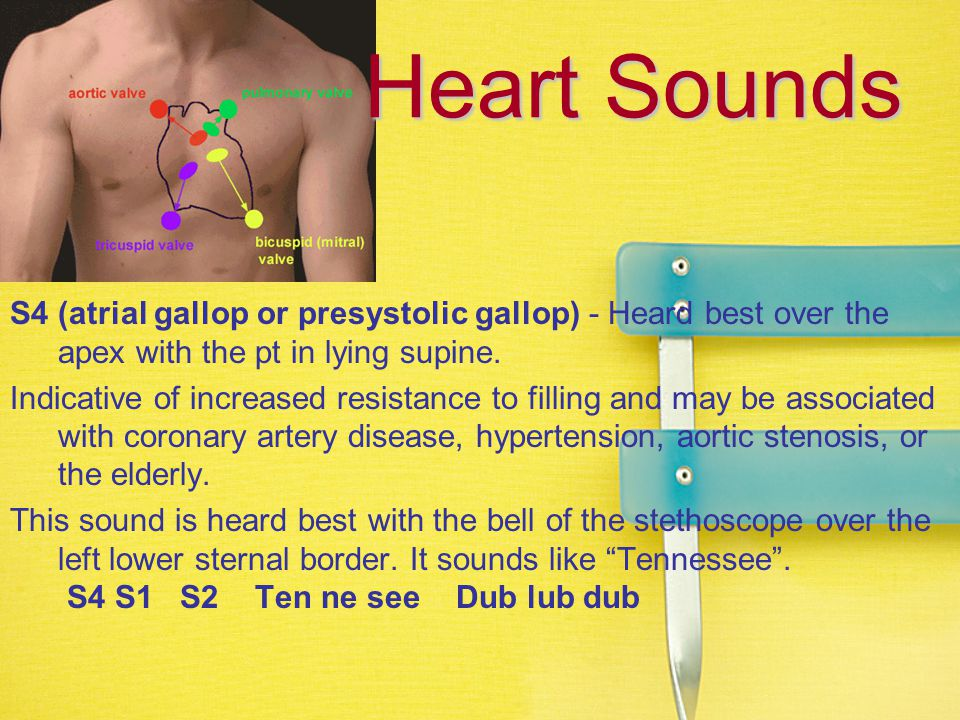 Heart Sounds S4 (atrial gallop or presystolic gallop) - Heard best over the apex with the pt in lying supine.