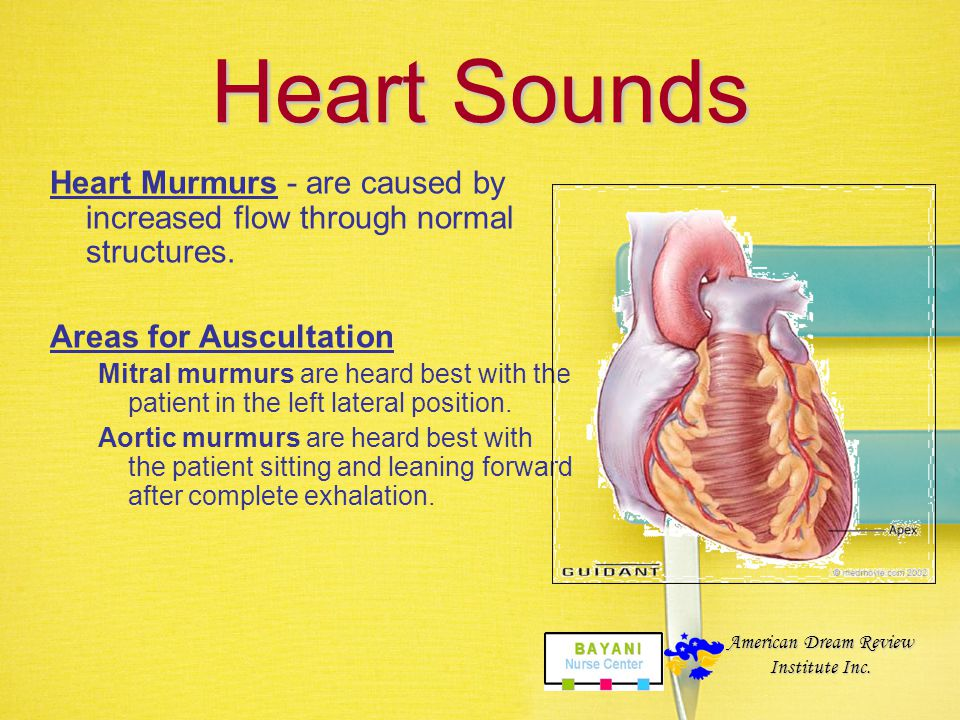 Heart Sounds Heart Murmurs - are caused by increased flow through normal structures. Areas for Auscultation.