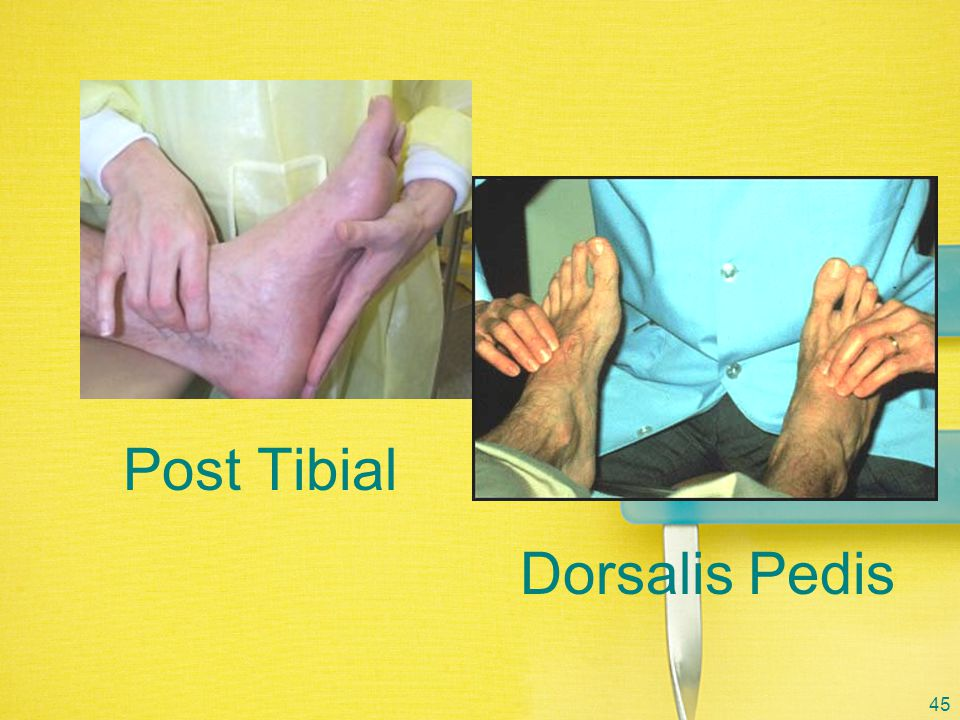 Post Tibial Dorsalis Pedis