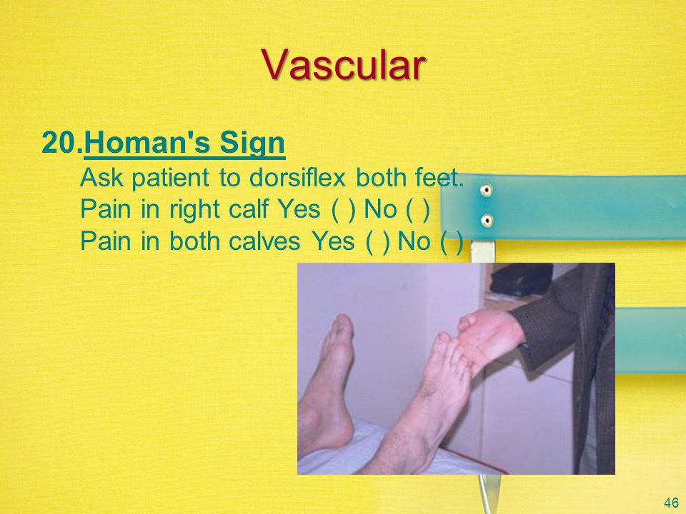 Vascular Homan s Sign Ask patient to dorsiflex both feet.
