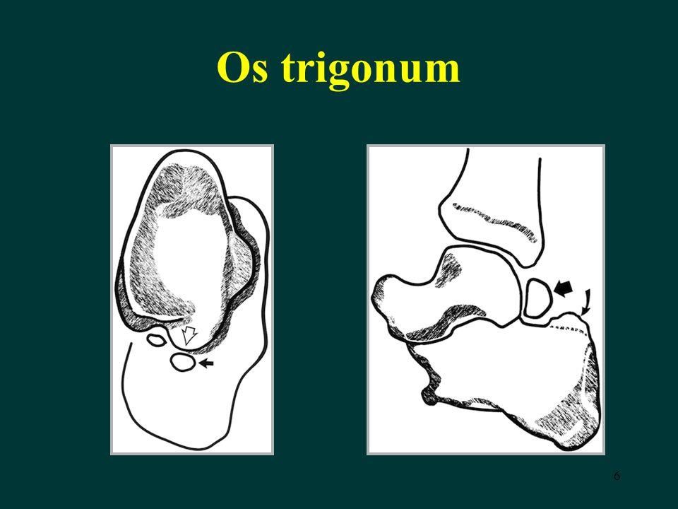Os trigonum