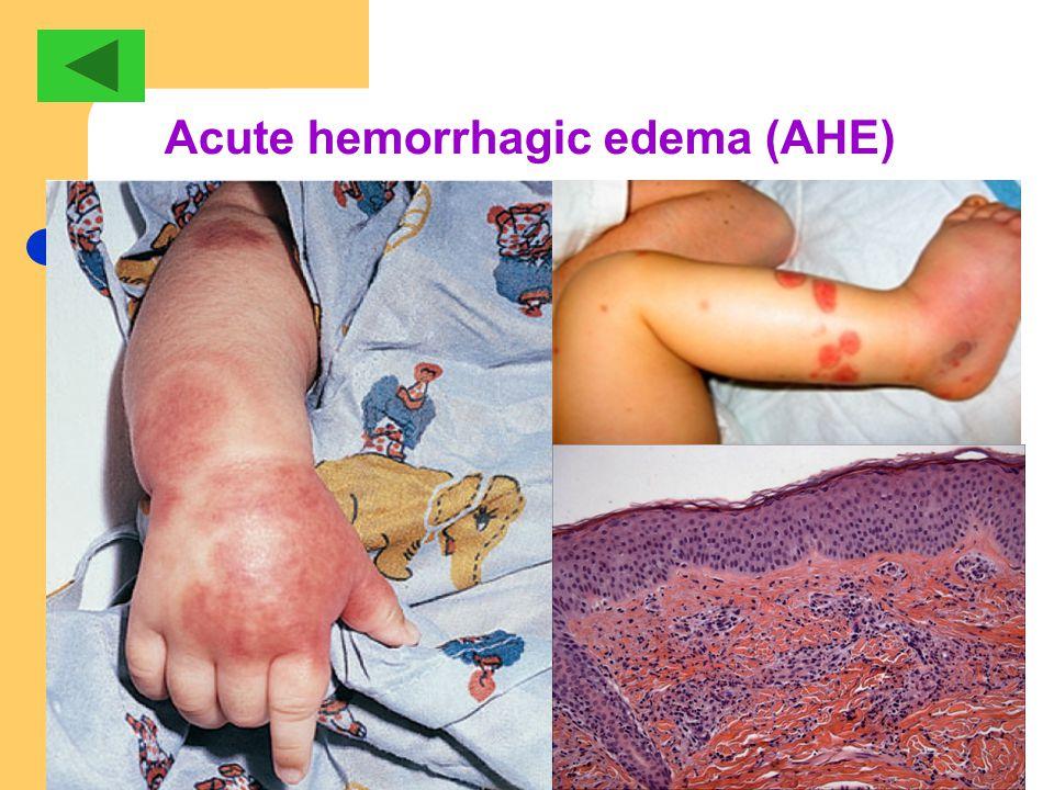 Acute hemorrhagic edema (AHE)