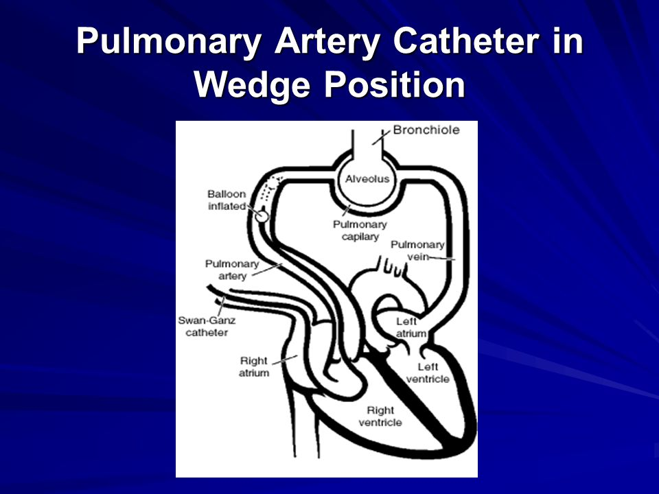 Pulmonary Artery Catheter in Wedge Position