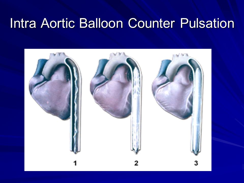 Intra Aortic Balloon Counter Pulsation