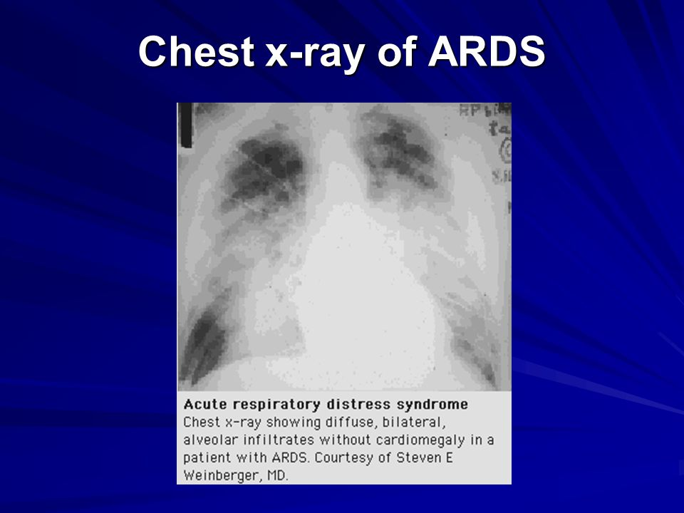 Chest x-ray of ARDS