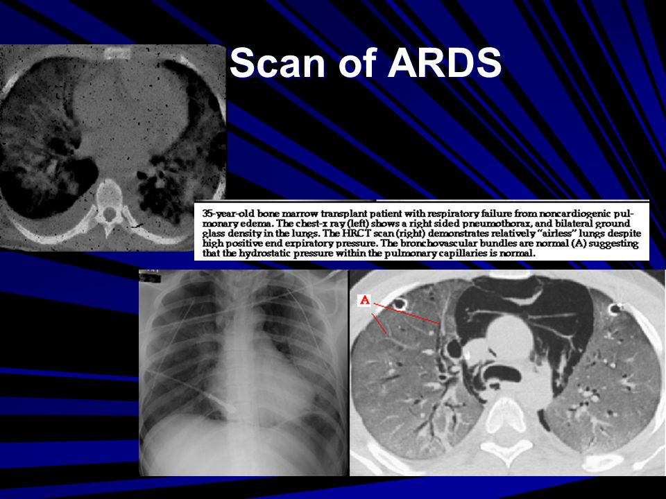 CT Scan of ARDS