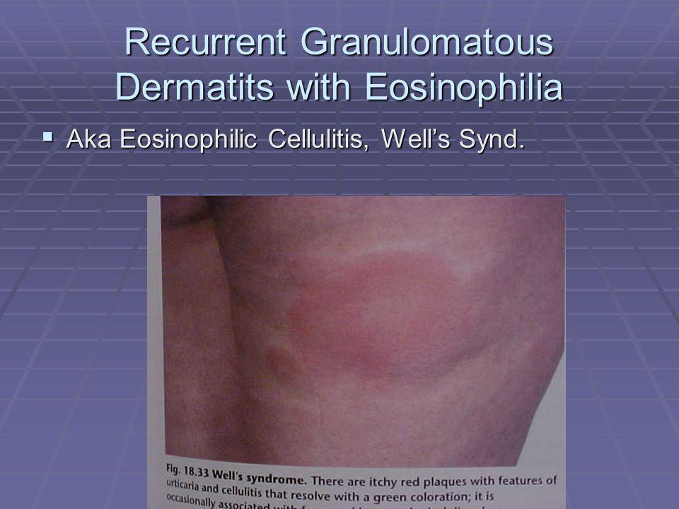 Recurrent Granulomatous Dermatits with Eosinophilia