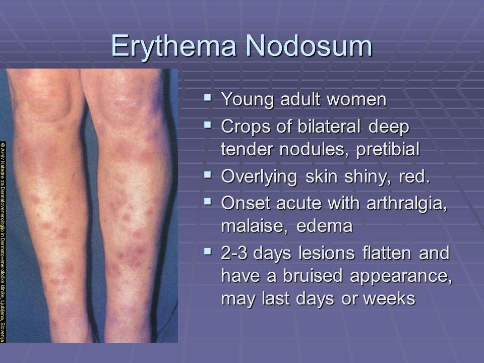 Erythema Nodosum Young adult women