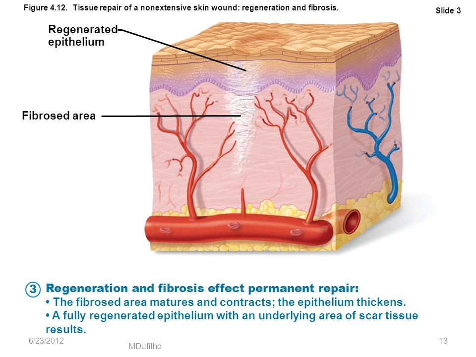 Regeneration and fibrosis effect permanent repair: