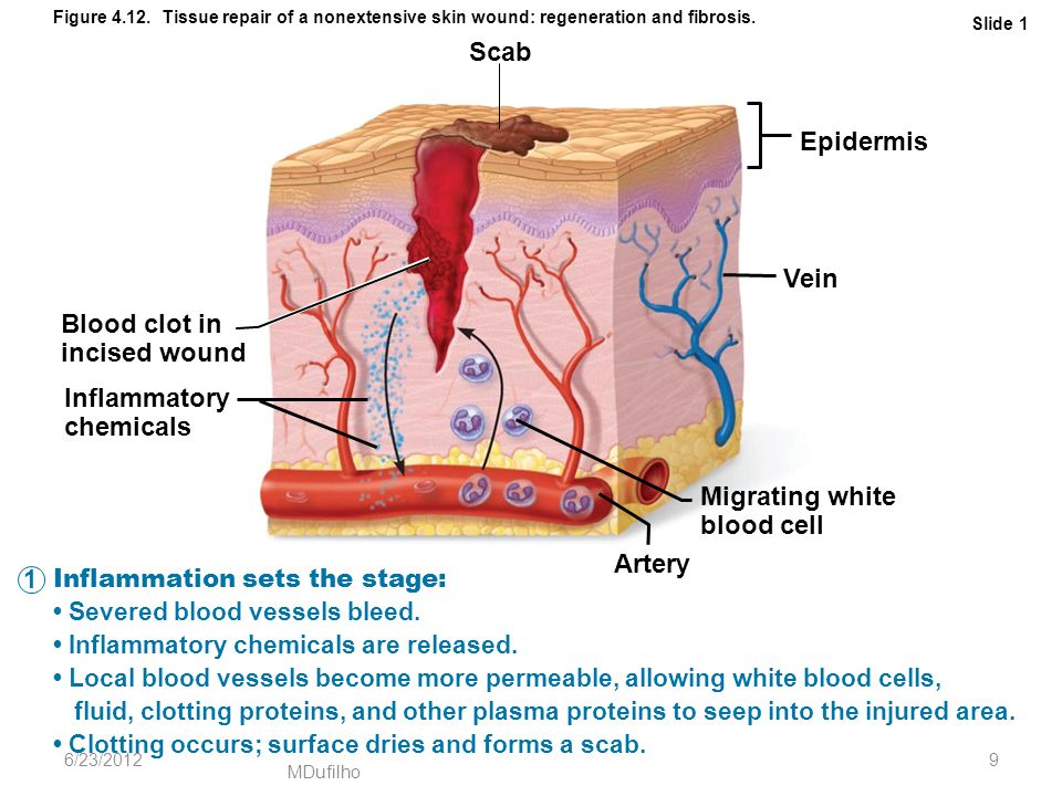 Scab Epidermis Vein Blood clot in incised wound Inflammatory chemicals