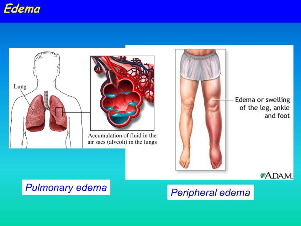 Edema Pulmonary edema Peripheral edema Circulatory Systems - 1