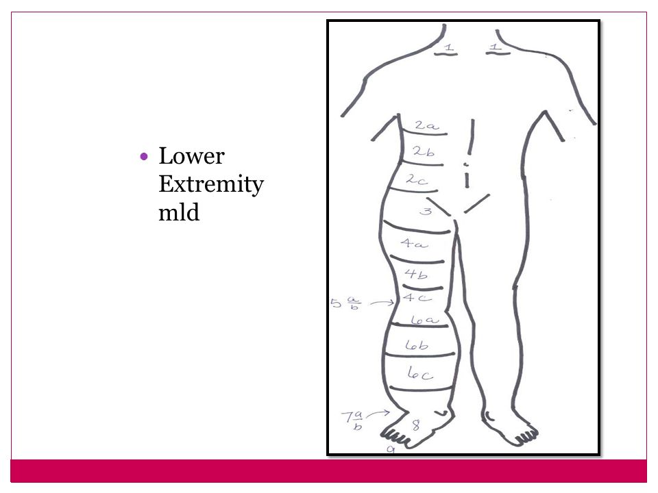 Lower Extremity mld