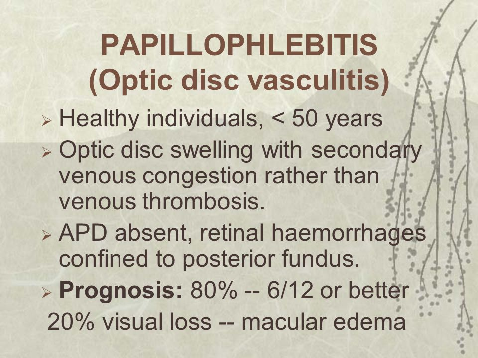 PAPILLOPHLEBITIS (Optic disc vasculitis)