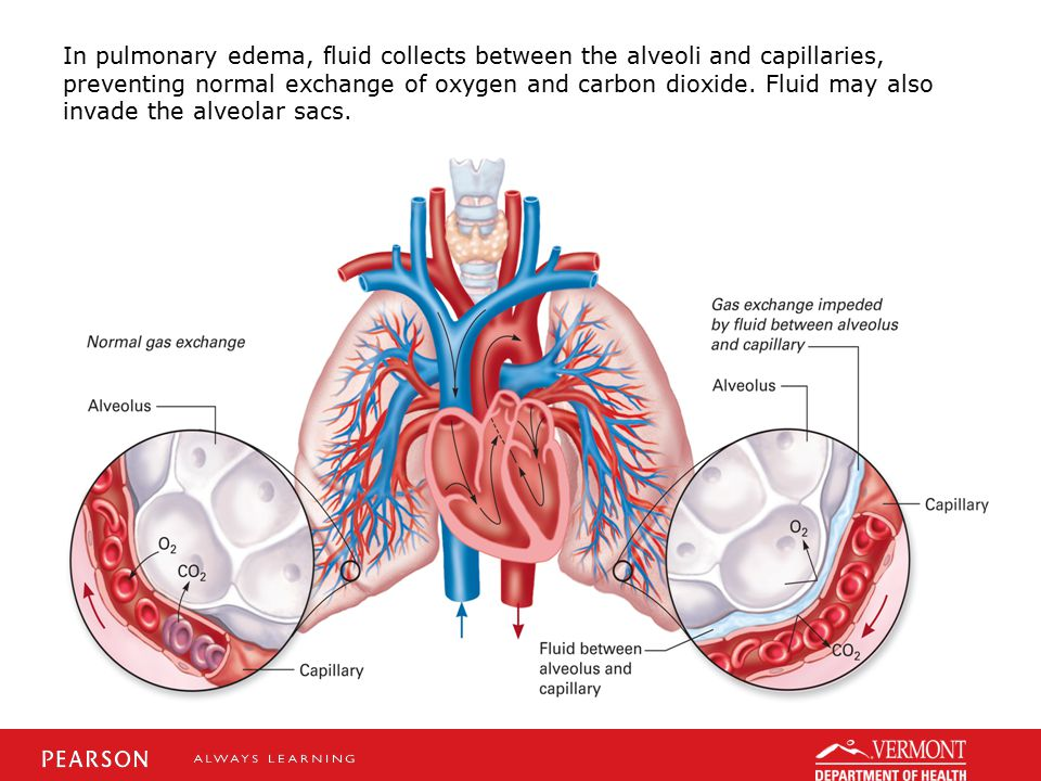 In pulmonary edema, fluid collects between the alveoli and capillaries, preventing normal exchange of oxygen and carbon dioxide. Fluid may also invade the alveolar sacs.