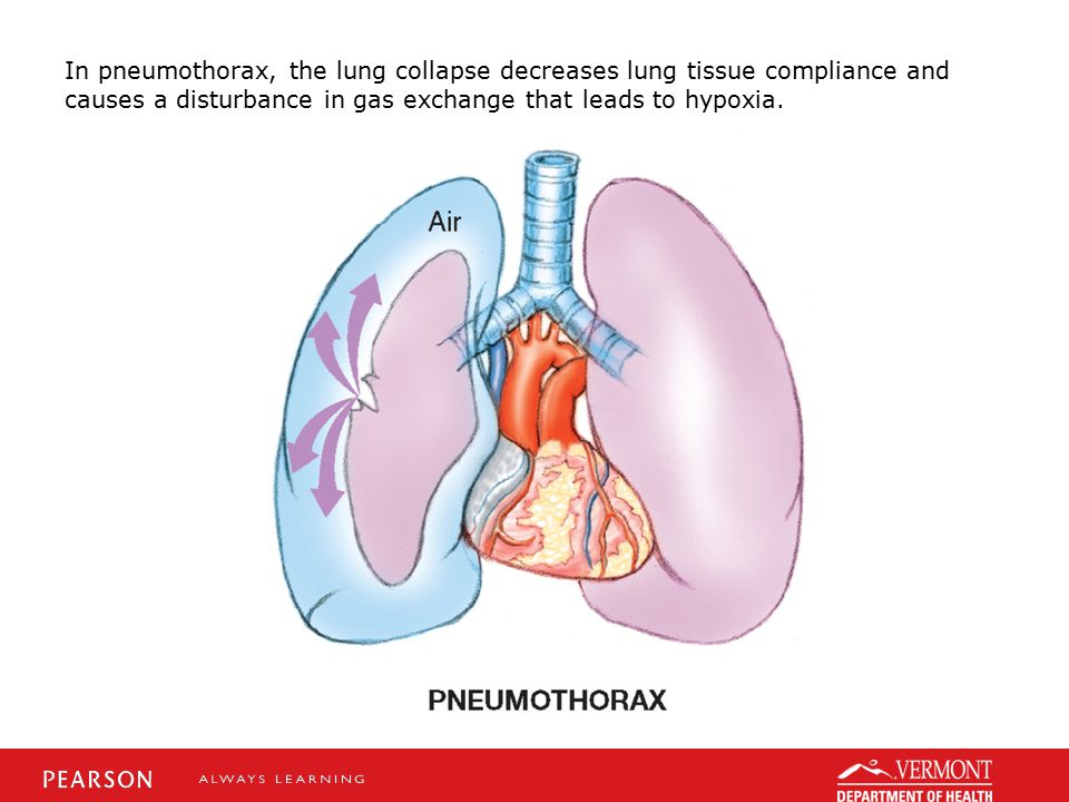 In pneumothorax, the lung collapse decreases lung tissue compliance and causes a disturbance in gas exchange that leads to hypoxia.