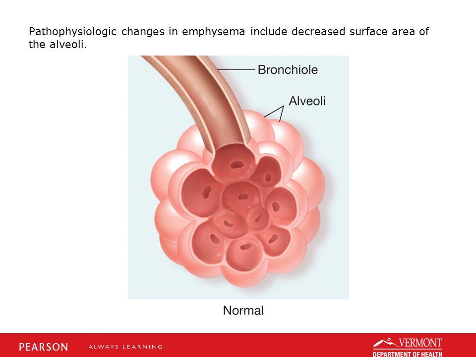 Pathophysiologic changes in emphysema include decreased surface area of the alveoli.