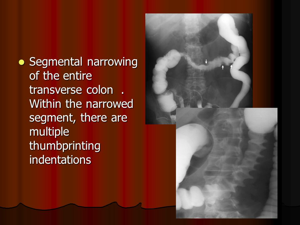 Segmental narrowing of the entire transverse colon .