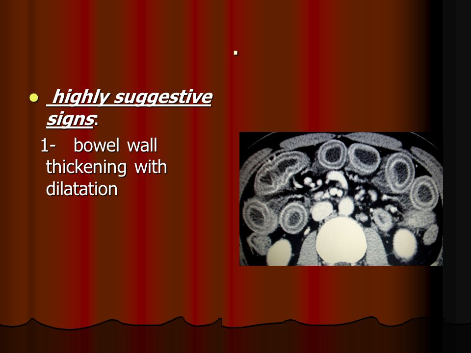 . highly suggestive signs: 1- bowel wall thickening with dilatation