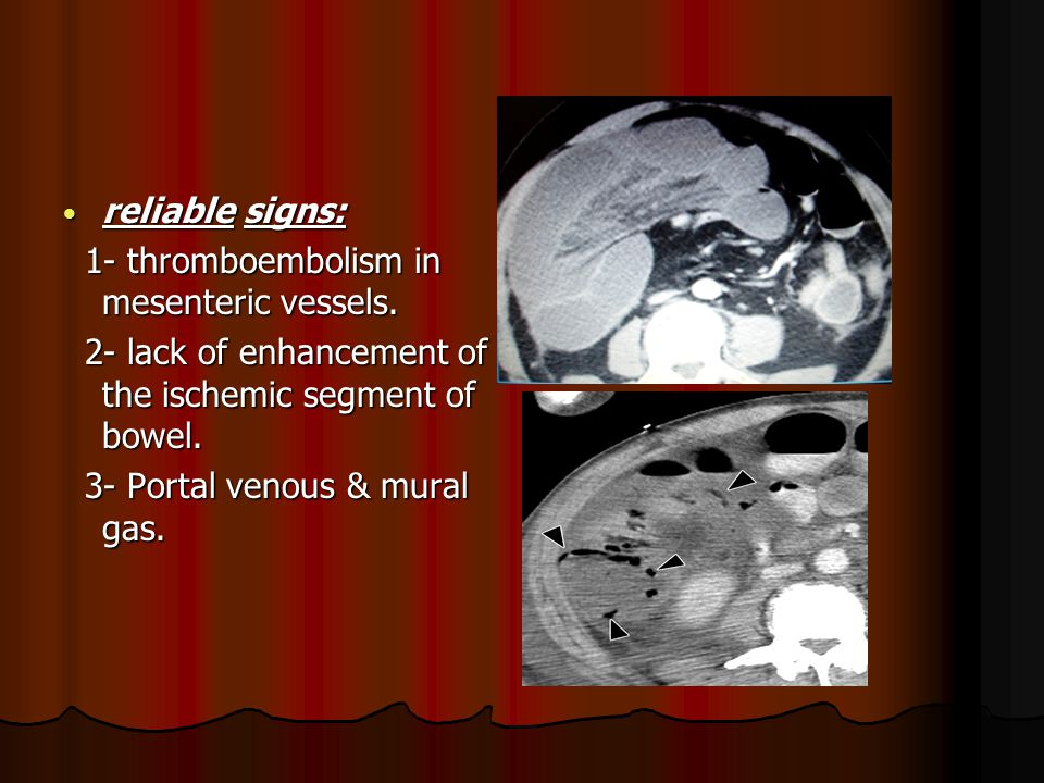 . reliable signs: 1- thromboembolism in mesenteric vessels.