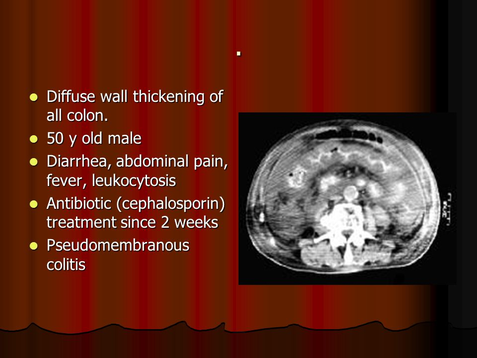 . Diffuse wall thickening of all colon. 50 y old male