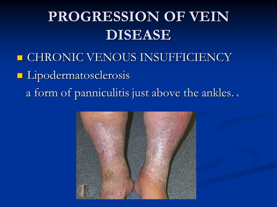 PROGRESSION OF VEIN DISEASE