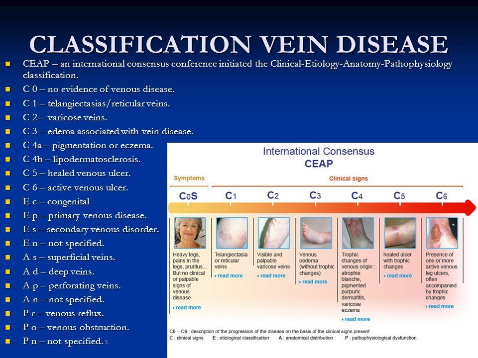 CLASSIFICATION VEIN DISEASE