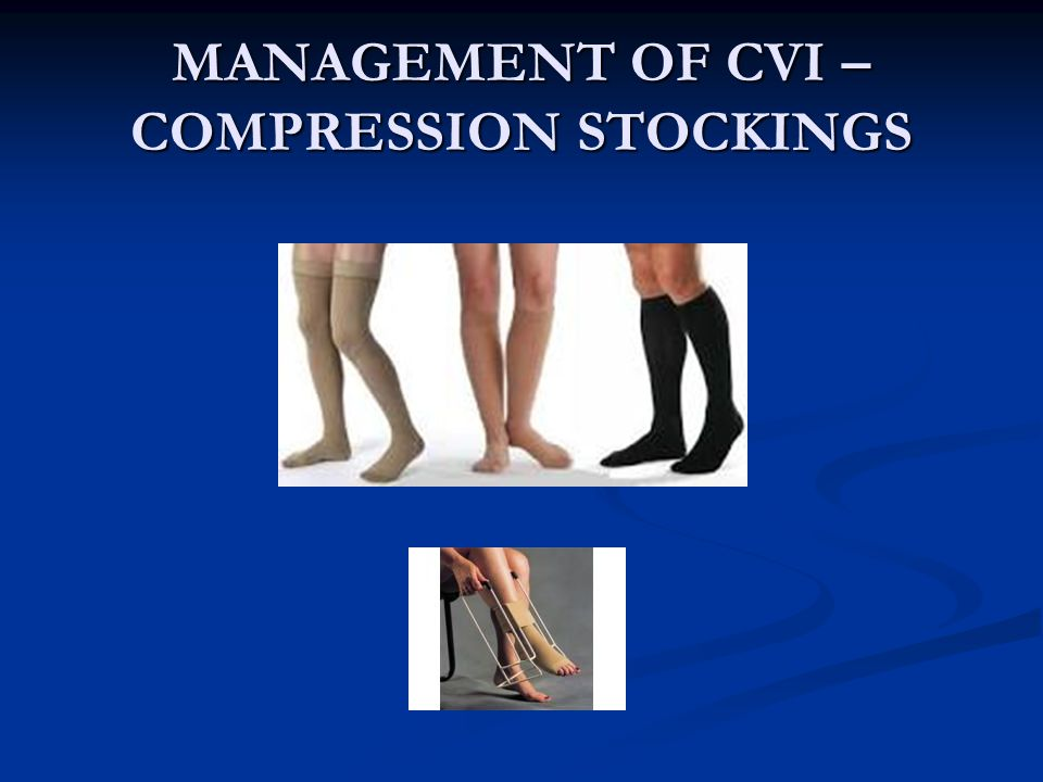 MANAGEMENT OF CVI – COMPRESSION STOCKINGS