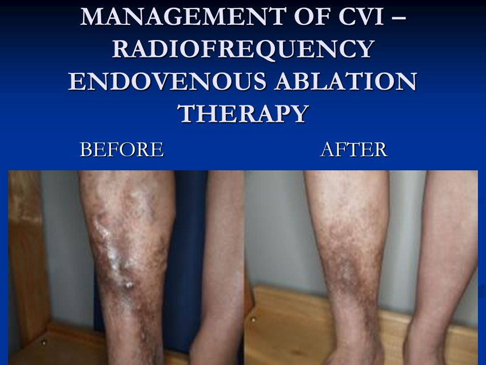 MANAGEMENT OF CVI – RADIOFREQUENCY ENDOVENOUS ABLATION THERAPY