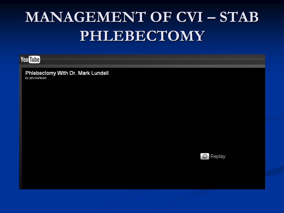 MANAGEMENT OF CVI – STAB PHLEBECTOMY
