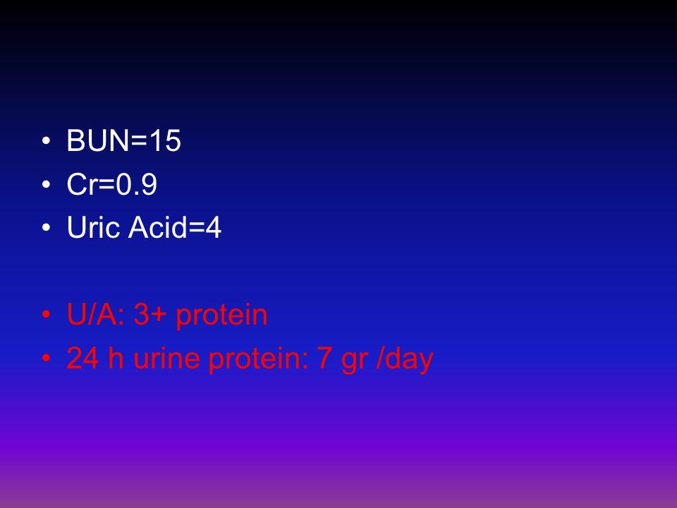 BUN=15 Cr=0.9 Uric Acid=4 U/A: 3+ protein 24 h urine protein: 7 gr /day