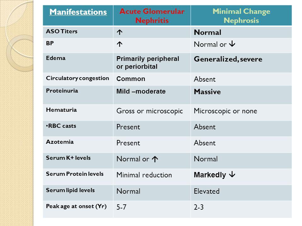 Minimal Change Nephrosis