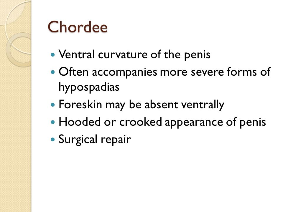 Chordee Ventral curvature of the penis