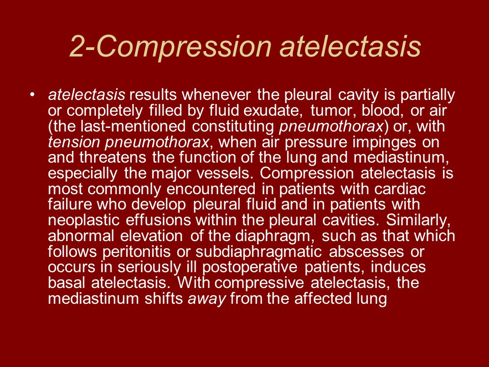 2-Compression atelectasis