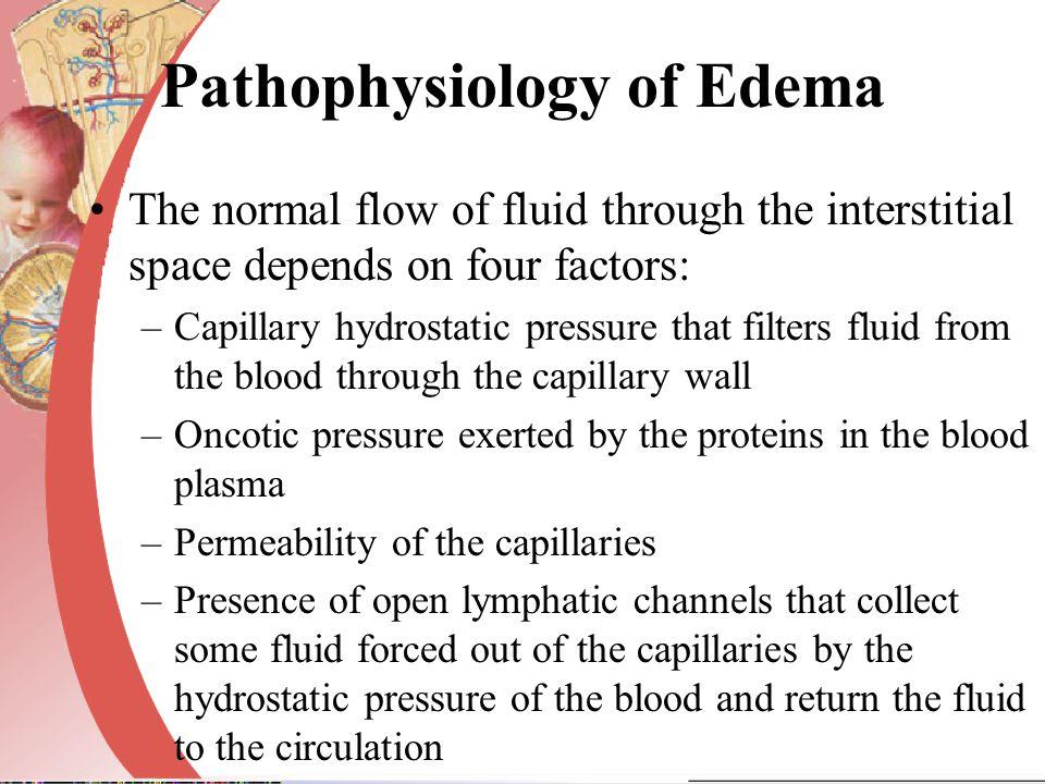 Pathophysiology of Edema