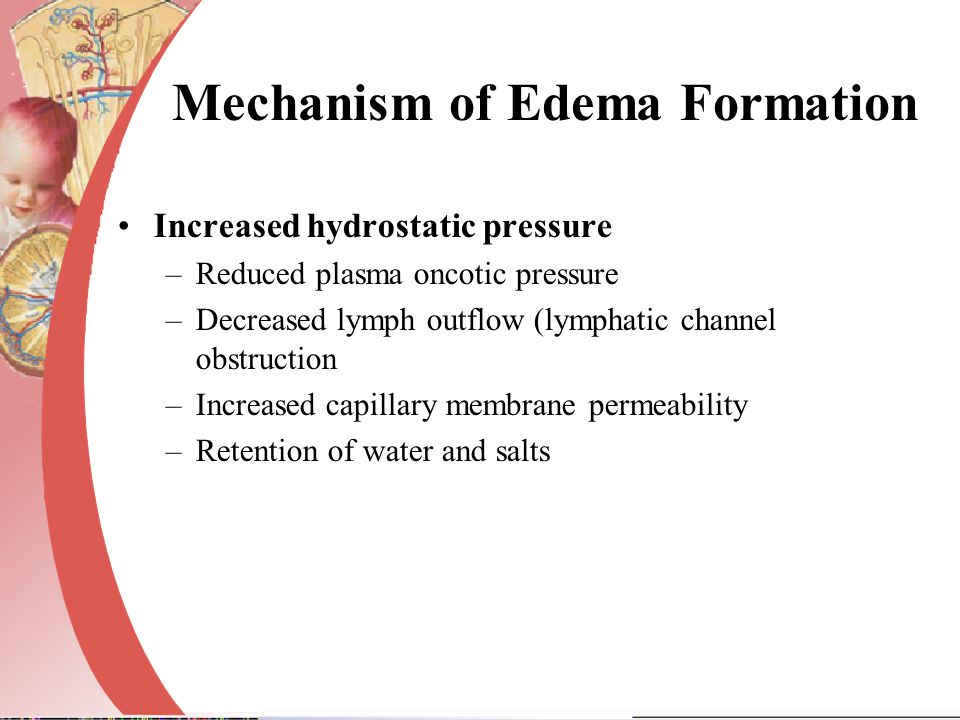 Mechanism of Edema Formation