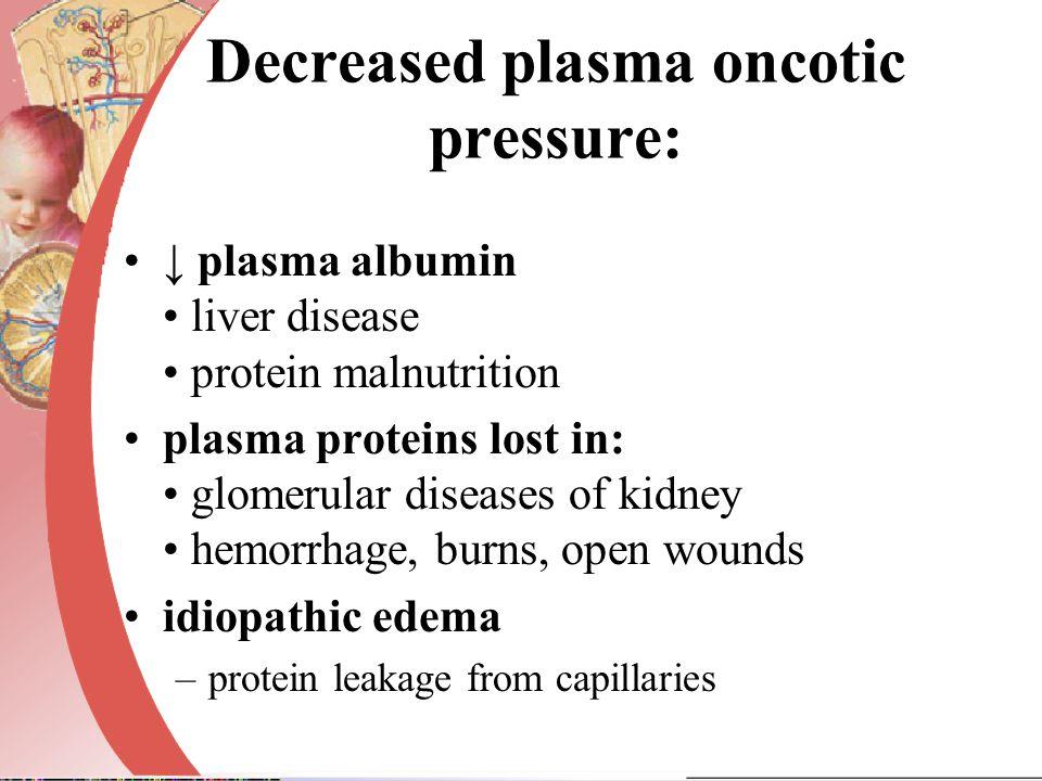Decreased plasma oncotic pressure:
