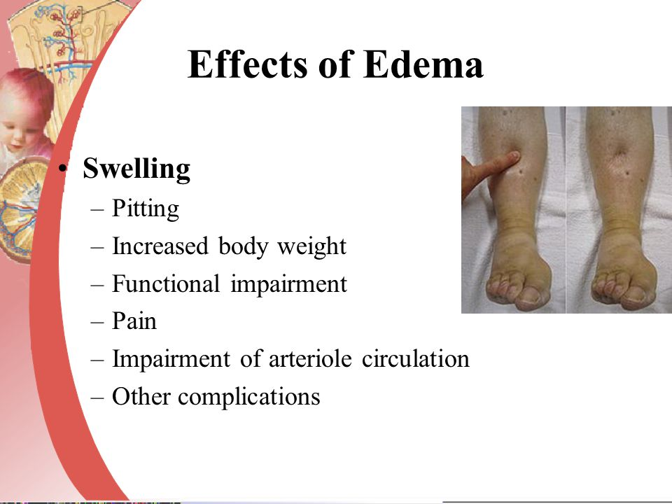 Effects of Edema Swelling Pitting Increased body weight