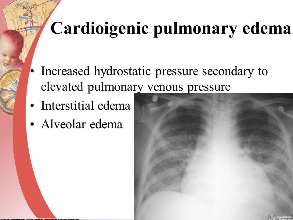 Cardioigenic pulmonary edema