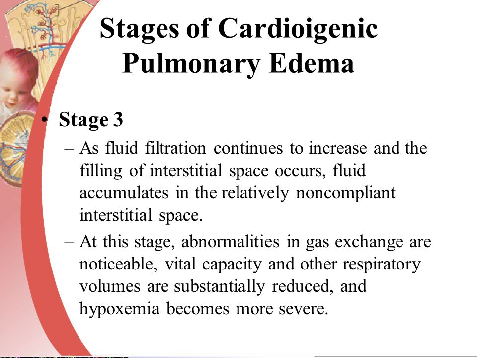 Stages of Cardioigenic Pulmonary Edema