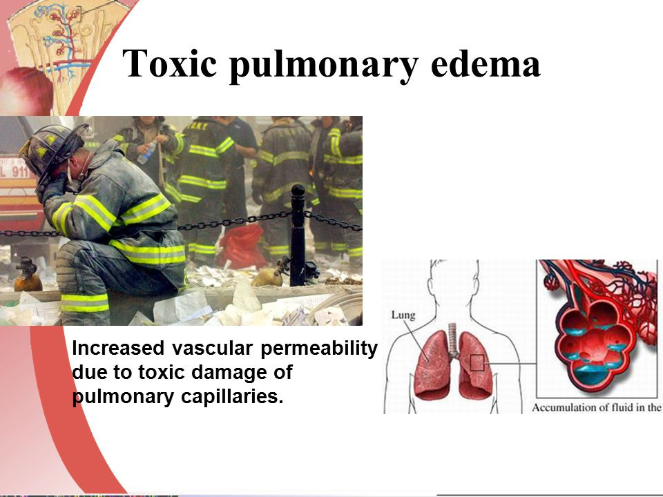 Toxic pulmonary edema Increased vascular permeability due to toxic damage of.