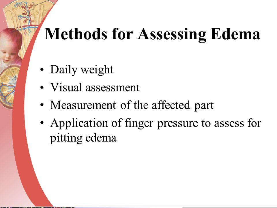 Methods for Assessing Edema