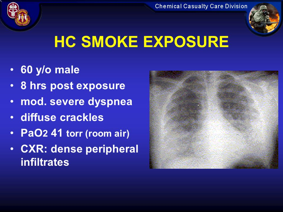 HC SMOKE EXPOSURE 60 y/o male 8 hrs post exposure mod. severe dyspnea