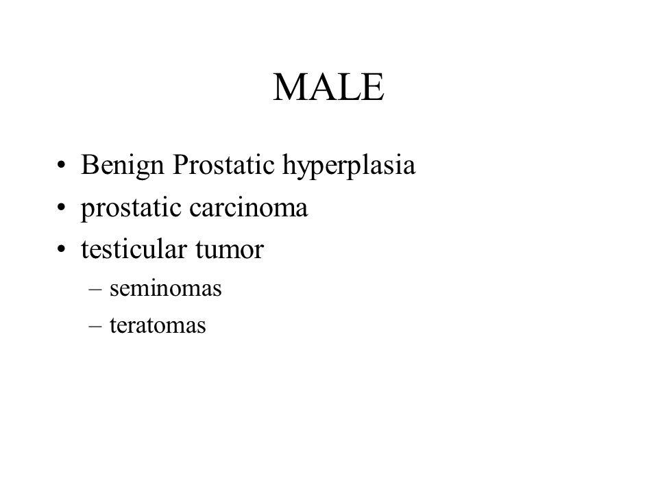 MALE Benign Prostatic hyperplasia prostatic carcinoma testicular tumor
